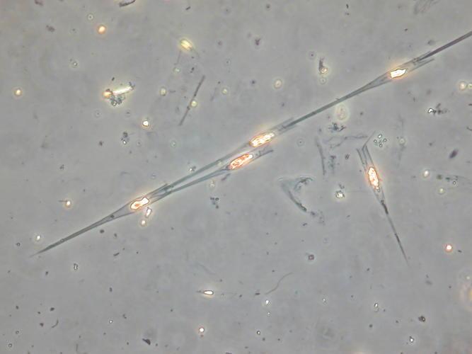Dinobryon bavaricum