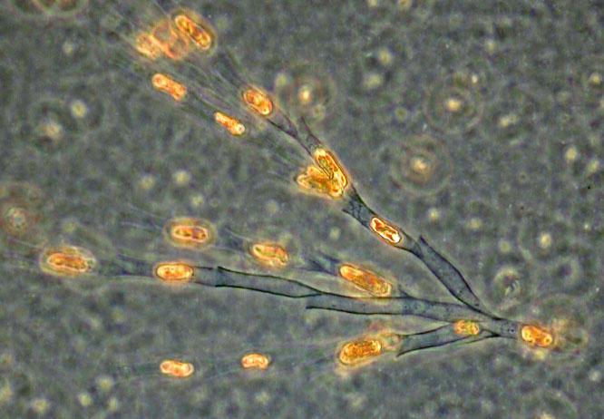 Dinobryon cylindricum